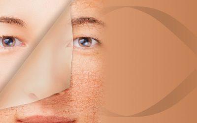 Miért fontosak a peelingek a kozmetikában, és miért szeretjük használni őket?!